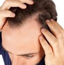 caduta diradamento capelli fattori spicosomatici Studio Psicologico Milano Dr. Francesca Minore